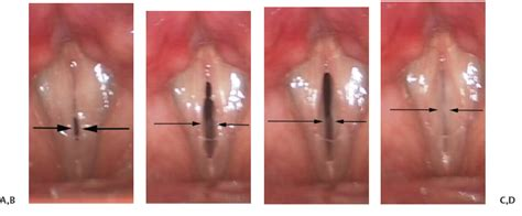 Normal Vocal Fold Symmetry and Phase Characteristics