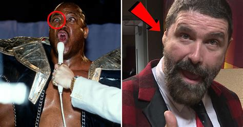 15 Wrestlers Who Had To Live With Deformities | TheSportster