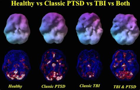 Brain Scans Can Tell Post-Traumatic Stress Disorder and