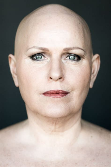 Women With Alopecia Captured In Beautiful Pictures